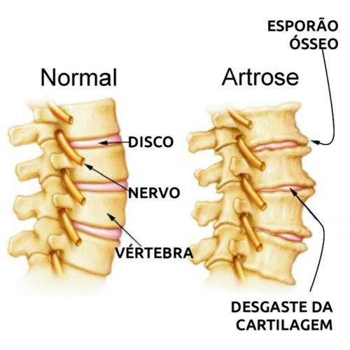 Artrose tem cura?