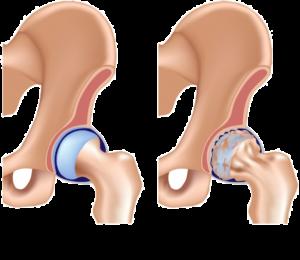 Você tem Artrose no quadril? Quais as causas e tratamentos