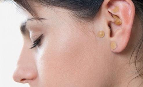 Como Funciona a Auriculoterapia Para Emagrecimento